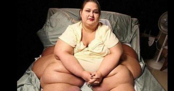 Hun veide 470 kg og kunne ikke gå. Men du vil ikke TRO hvordan hun ser ut nå!