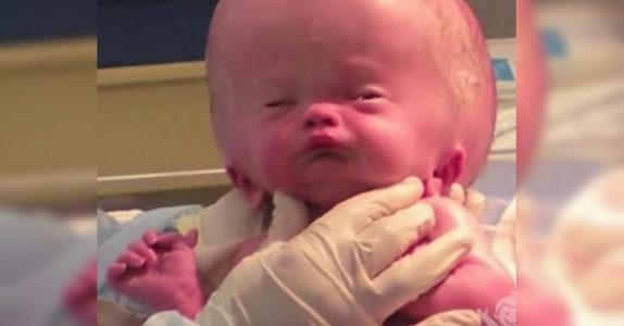 Babyen ble født med et gigantisk hode. 20 måneder senere, kan ikke legene tro hvordan han ser ut!