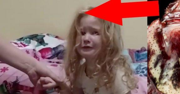 Jenta har mistet kontrollen på lemmene sine. Men for å finne årsaken, måtte legene lete i HÅRET!