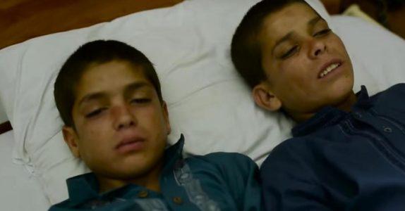 På dagtid er disse to guttene helt normale. Men når solen går ned, skjer det noe med kroppene deres!