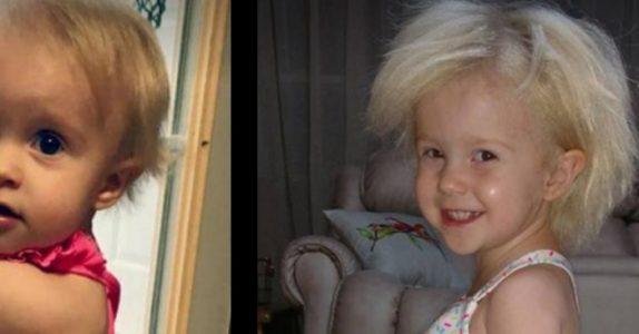 Siden hun ble født, har håret hennes stått rett til værs. Nå har foreldrene endelig funnet ut hva som er årsaken!