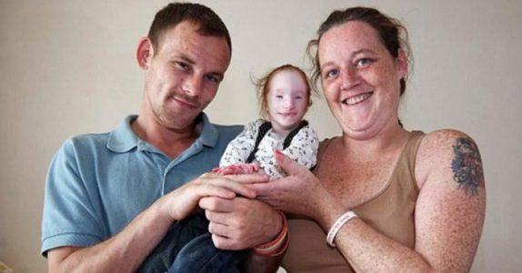 Legene ga ikke engang den lille jenta et år å leve. Men SE på henne nå!