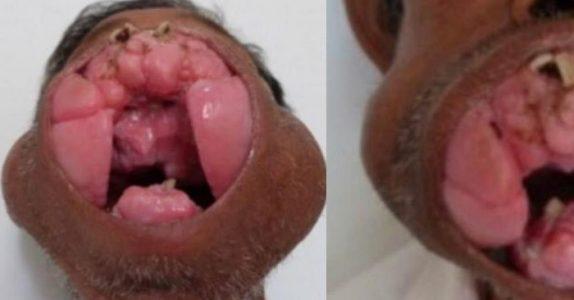 Legene fjernet denne enorme veksten fra mannens munn. I dag ser han HELT annerledes ut!