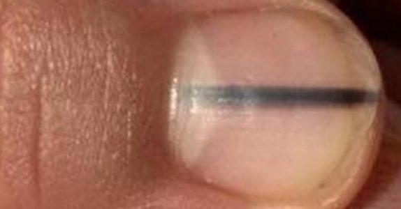 Sjokkdiagnose: Hudpleieren oppdaget noe merkelig med kundens negl. Det viste seg å være veldig alvorlig!