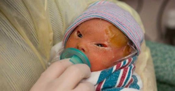 Moren blir knust når hun ser sin nyfødte datter. Men 2 uker senere innser hun at hun er et EKTE mirakel!