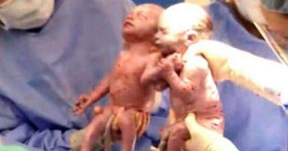 Mammaen hører legen skrike på fødestuen. Så ser hun nærmere på tvillingene og ser det utrolige!