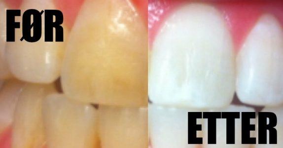 Bestemor snakket alltid om dette trikset for å bleke tennene. Men jeg trodde ikke på henne før jeg prøvde selv!
