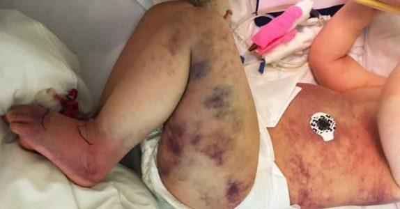 Moren trodde 3-årige Kristoffer hadde litt stukket av en veps. Så ble plutselig hele kroppen hans blå!
