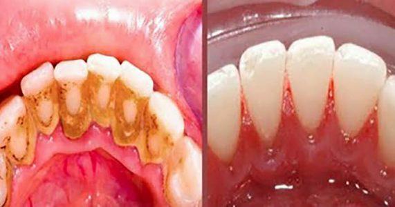 Med dette kjerringrådet unngår du tannlegen. Alt du trenger er 2 ingredienser!